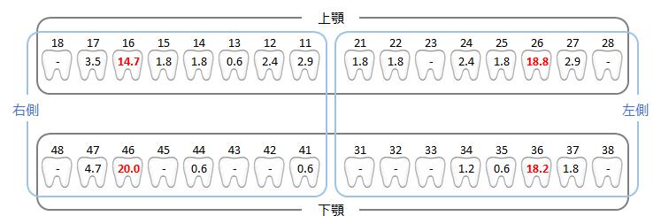 歯別のDMFT